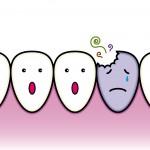 歯科治療 ~抗がん剤治療スタート前に、急いで終わらせなきゃ~