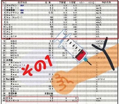 乳がんの血液検査の見方